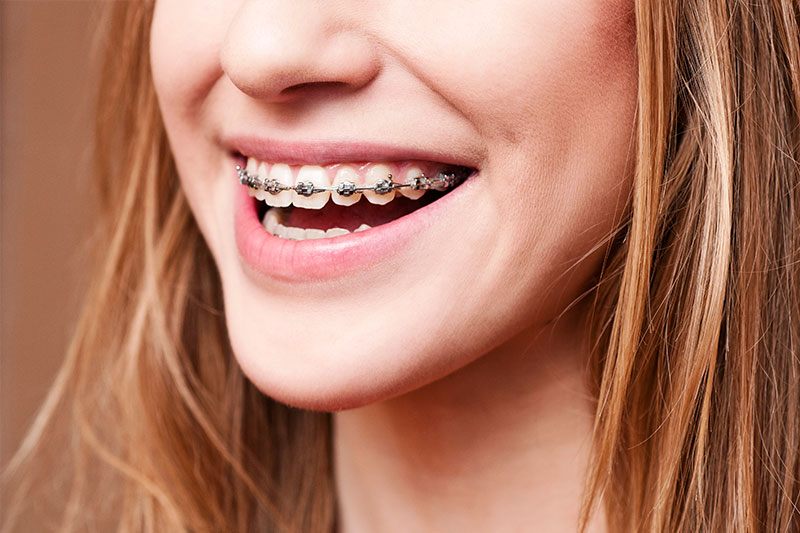 Orthodontics - Healthy Smiles by Joyce, Irvine Dentist